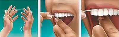 fio-dental